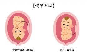 sakago-640x411.jpg